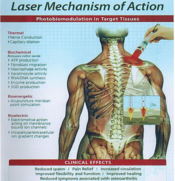Low Level Laser Therapy Dishir Physio Care And Laser